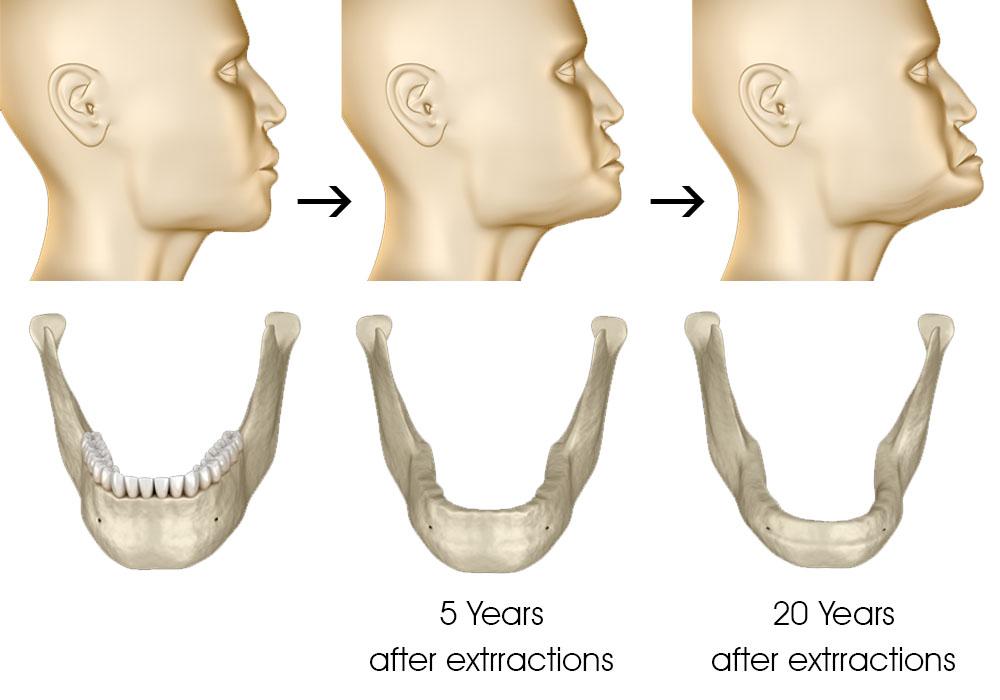 dental implants sunshine coast - jaw structure change over time