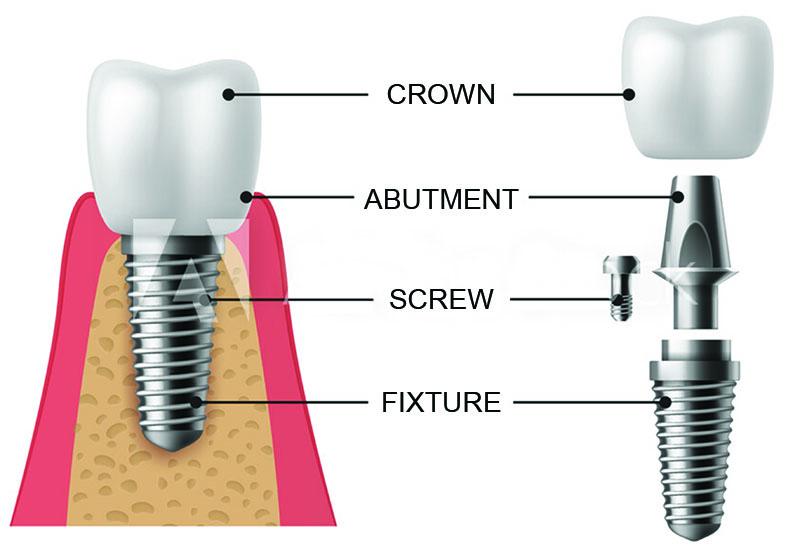 dental implants sunshine coast - dental implant diagram