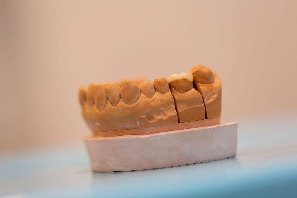 wisdom teeth removal Woombye - teeth model