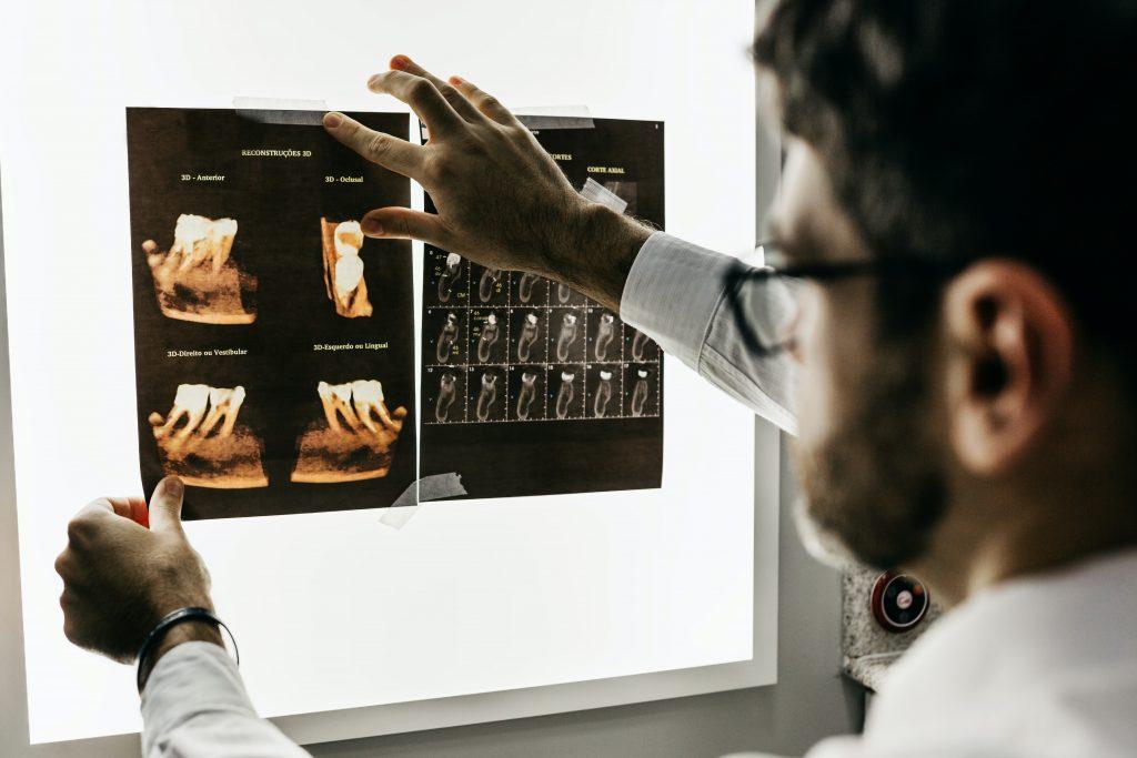 crowns and bridges - dentist checking Xrays