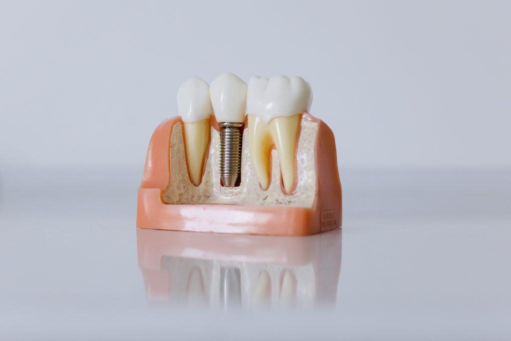dental implants Sunshine Coast- dental implant model
