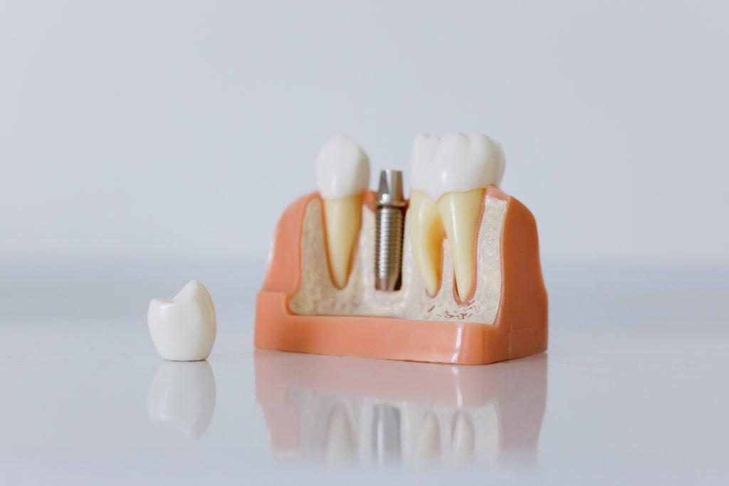dental implants Sunshine Coast- dentistry instrument
