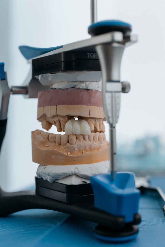 dental implants Palmview - dental model