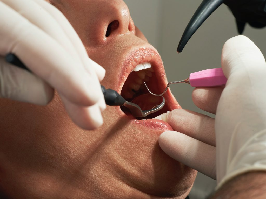 wisdom teeth removal Montville - person at the dentist