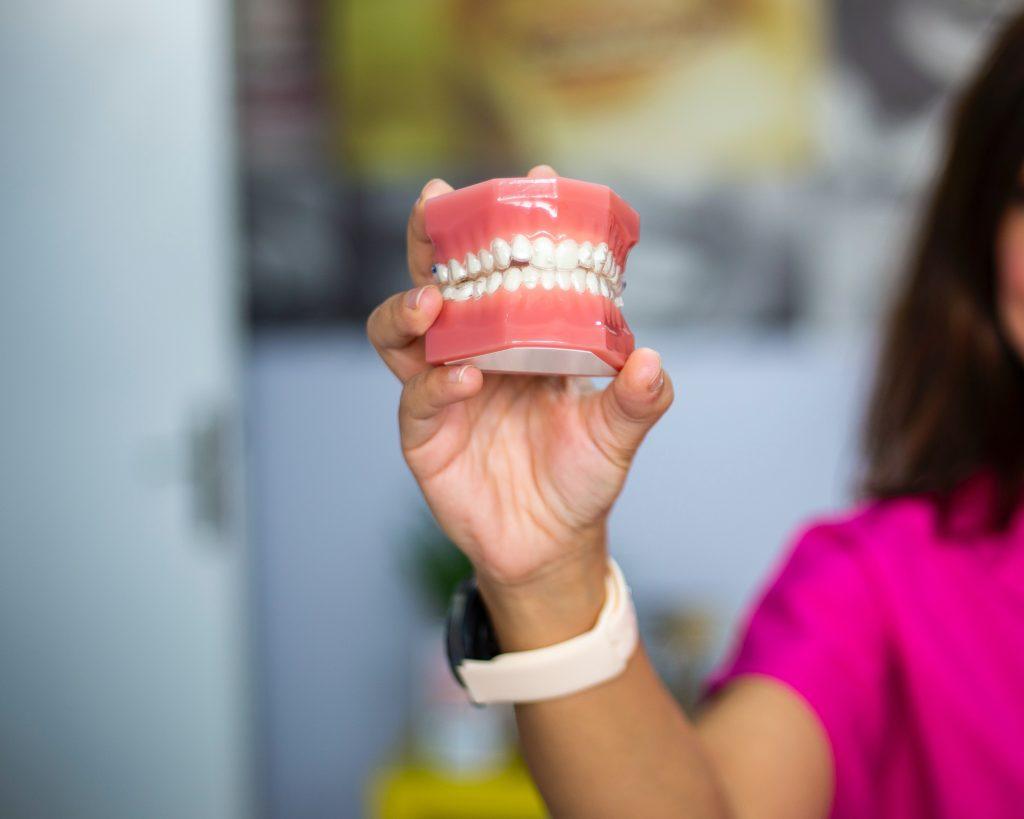 Dentist Chevallum - woman holding model teeth