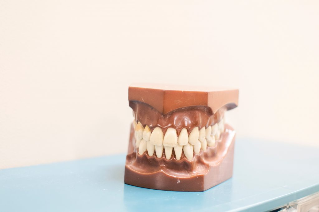 wisdom teeth removal Montville - teeth model