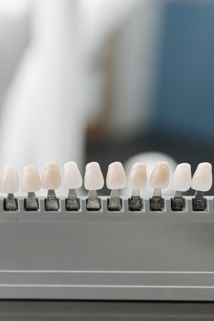 Dental Implants Sunshine Coast - model teeth
