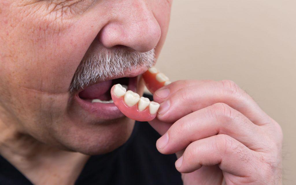 Dentures - Man wit hfalse teeth