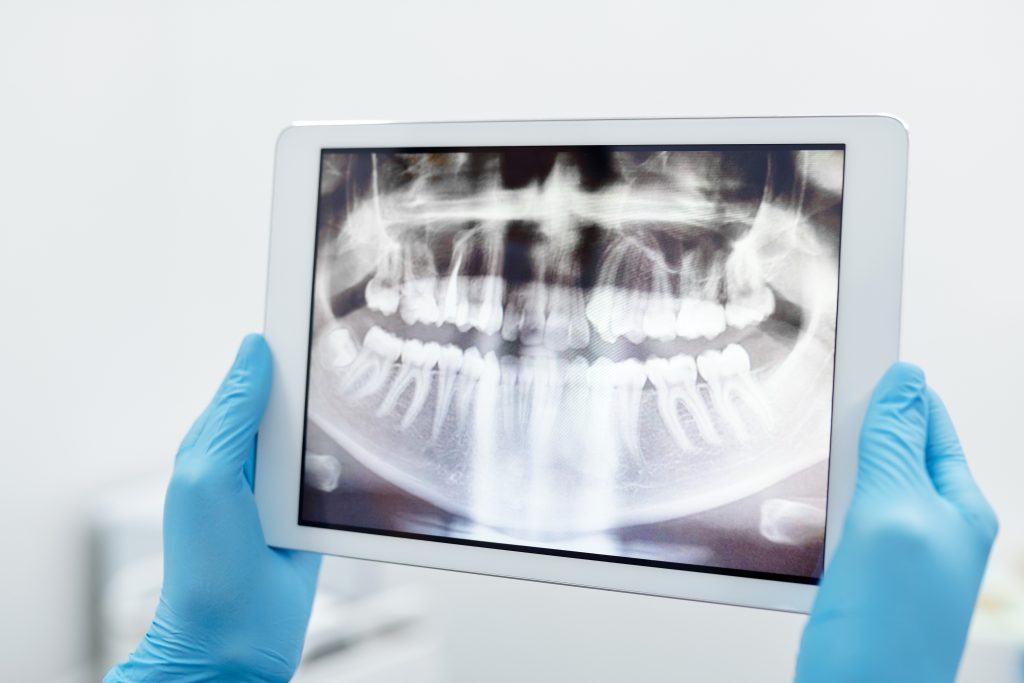 tooth extractions - xray on ipad