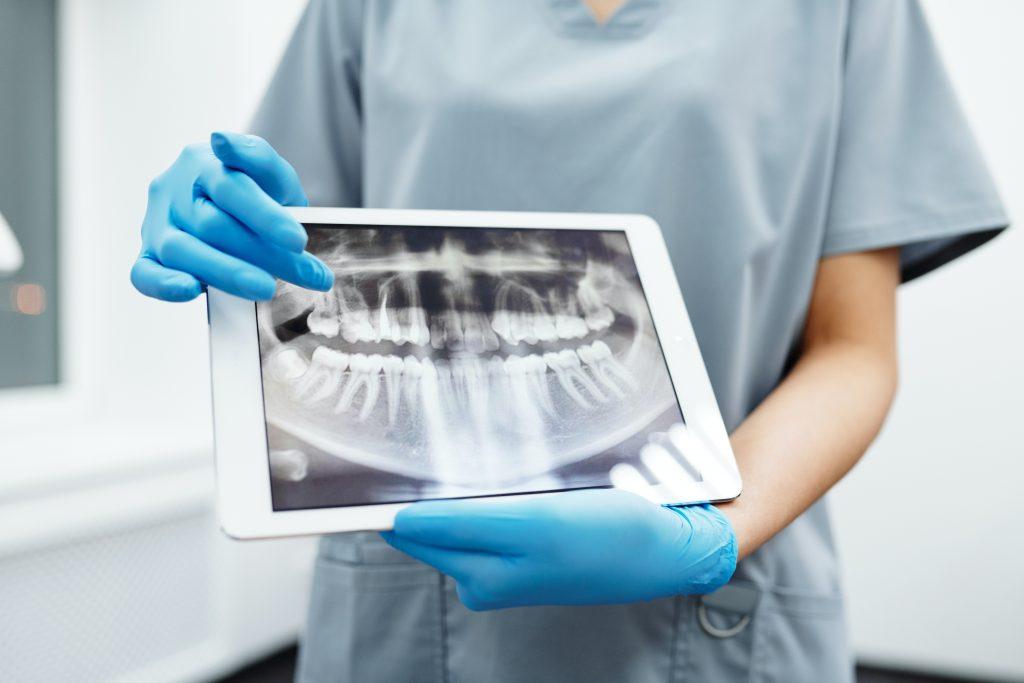 isdom Teeth Removal - X ray