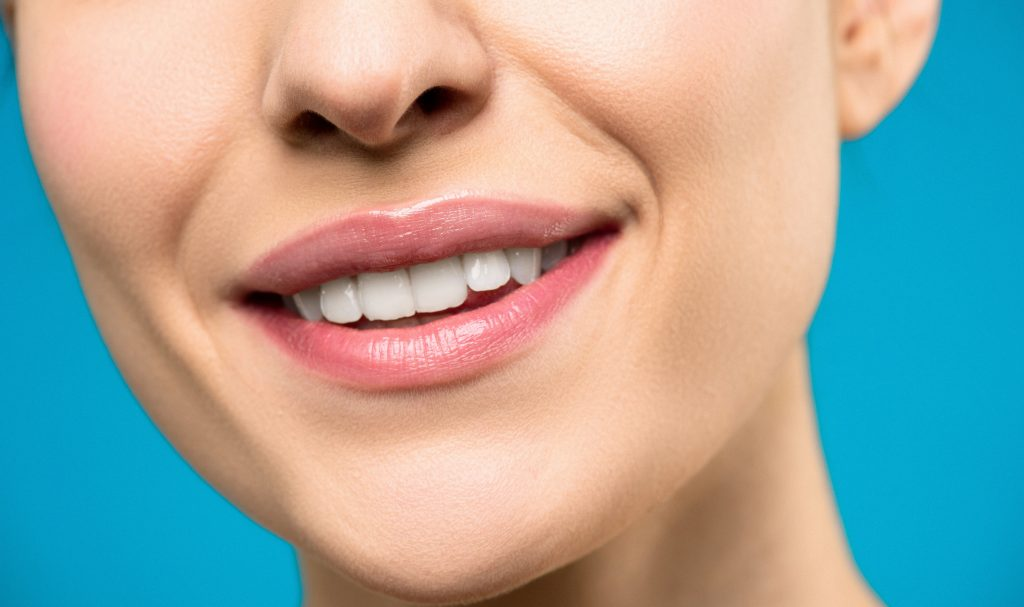 Professional Teeth Whitening - woman smiling