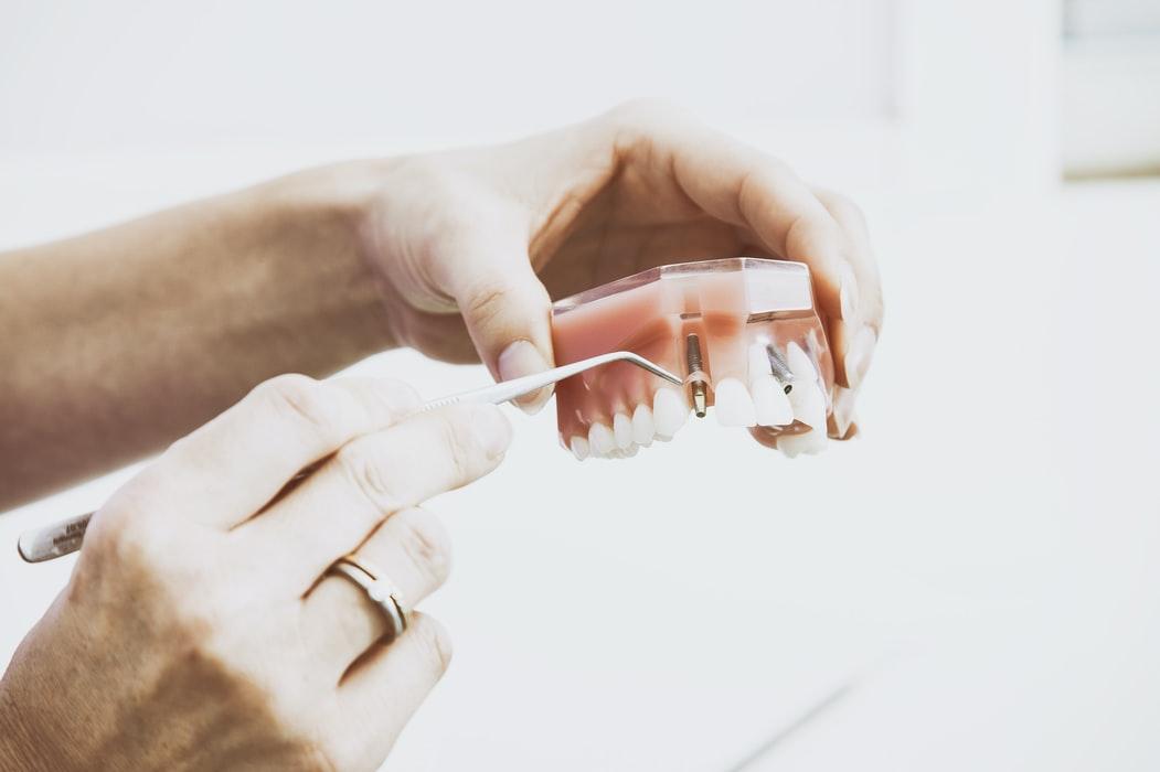 dental implants - hand and fake teeth